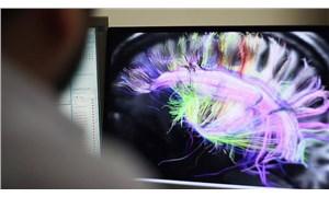 Doç. Dr. Ümit Savaşçı: Covid-19 geçirenlerin beyninde küçülme tespit edildi