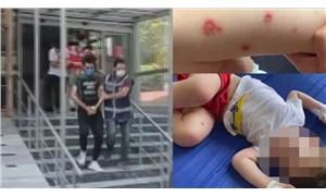 İki yaşındaki çocuğuna eziyet suçundan yargılanan sanık tahliye edildi