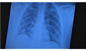 """""""Koronavirüse yakalanan 15 yaş altı çocuklarda ciddi akciğer tutulumları görüldü"""""""