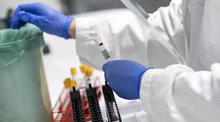 Şanlıurfa İl Sağlık Müdürlüğü: PCR testleri için kullanılan kitler arızalı çıktı